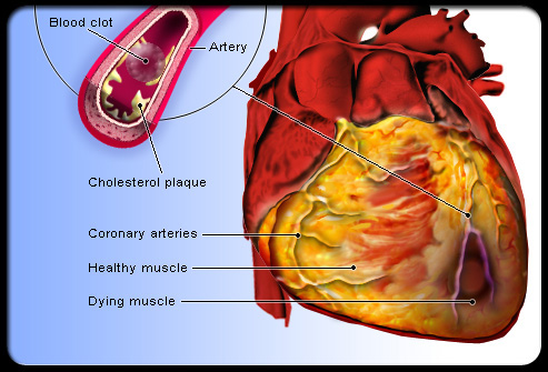 What Are The Different Types Of Heart Diseases