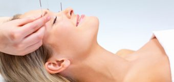 Why so buzz about Acupuncture?