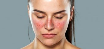 6 Things You Need to Know About Lupus
