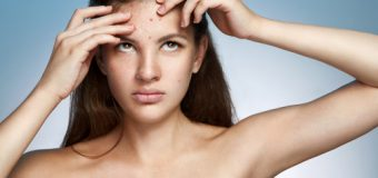 Acne and its effective Treatment