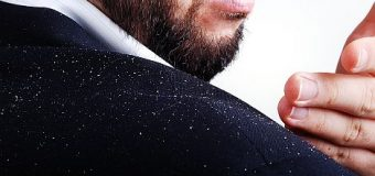 All natural ways to get rid of Dandruff in time!